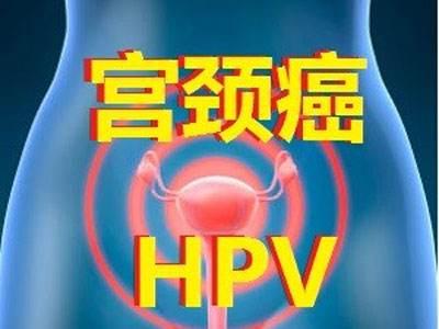 HPV DNA检测,预防宫颈癌