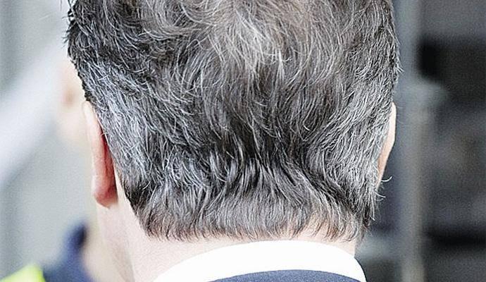 为啥压力太大白头发?