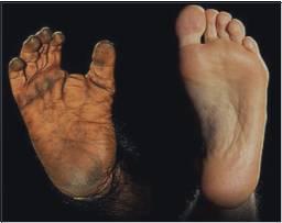 直立行走源于一个基因的改变